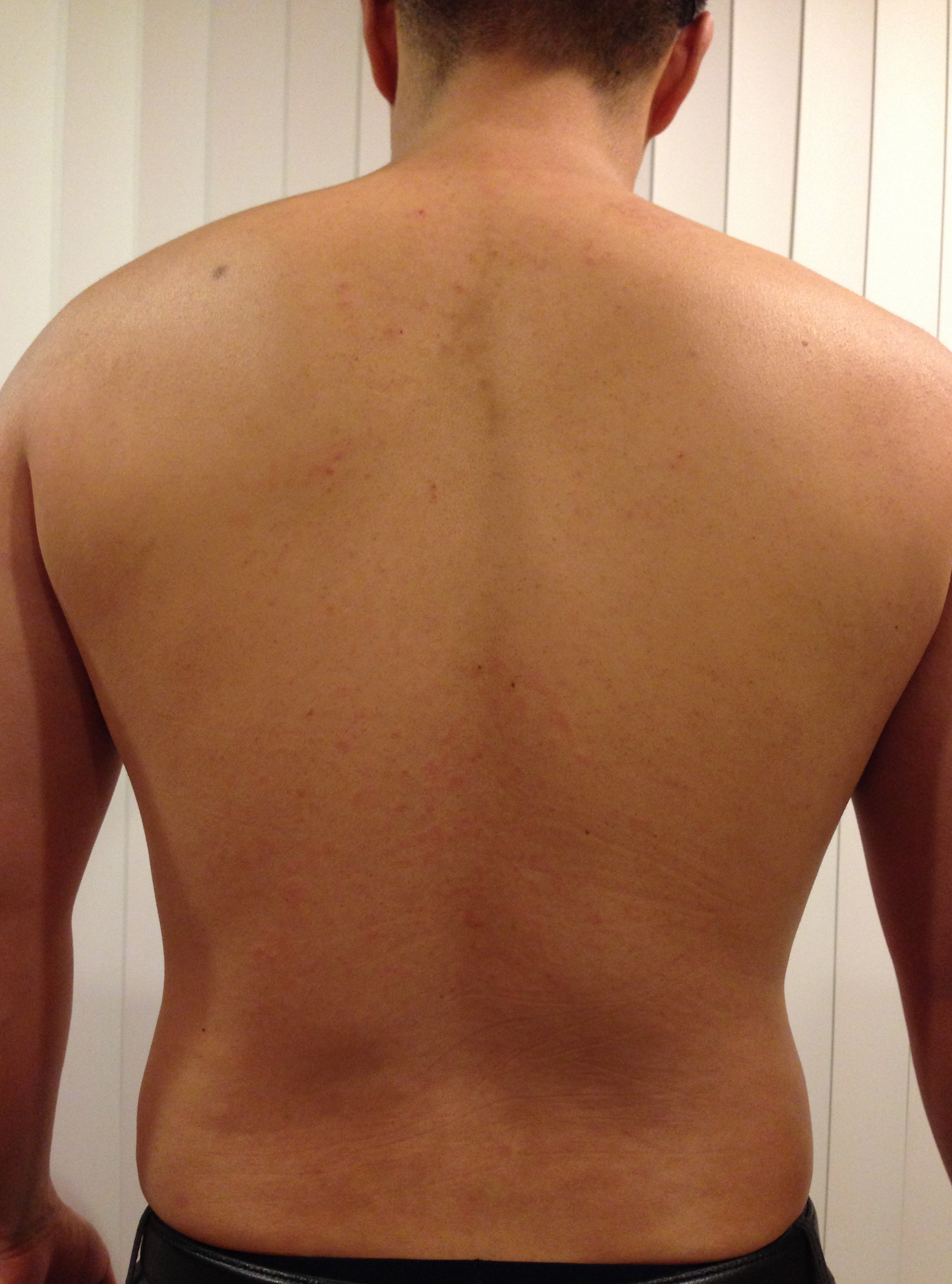 lower back rashes