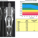 My DEXA Scan for Body Composition